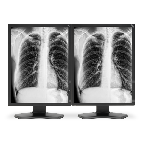21-inch Grayscale 3-megapixel Medical Diagnostic Monitors with Graphics Card