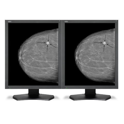 21-inch Grayscale 5-megapixel Medical Diagnostic Monitors with Graphics Card