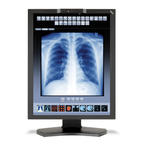 21.3-inch Color 3-Megapixel LED-Backlit Medical Diagnostic Monitor