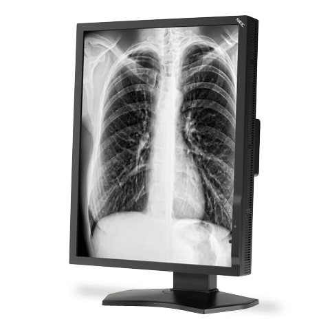 21-inch Grayscale 3-Megapixel Medical Diagnostic Monitor